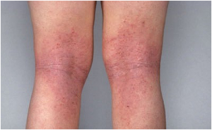 特应性皮炎 / 湿疹