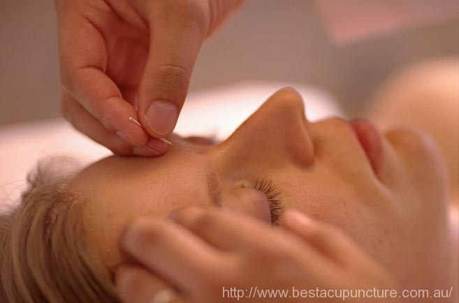 acupuncture for anxiety - mental illness/disorder
