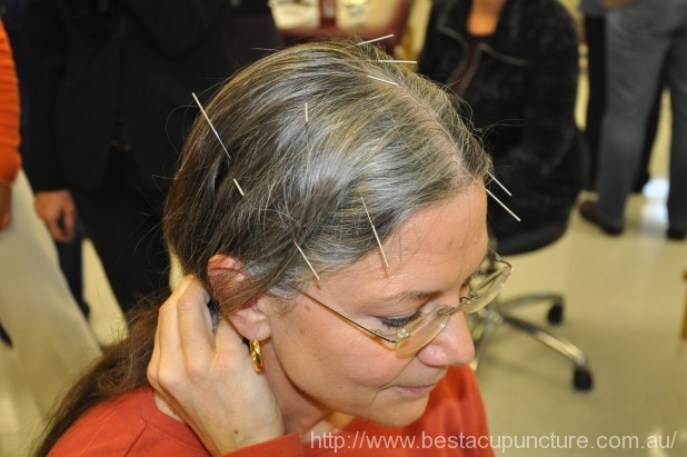 Acupuncture benefits Alzheimer's disease patients - Acupuncture Melbourne